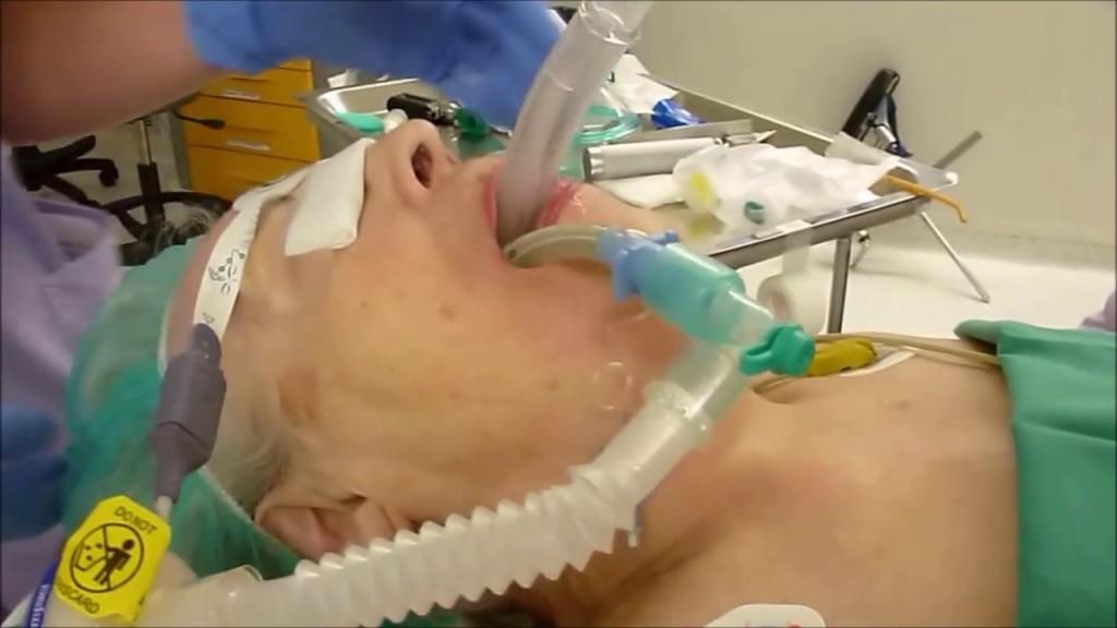LMA Insertion – Three Maneuvers – Anaesthesia News